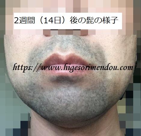 ゴリラクリニックでヒゲ脱毛初体験2週間後の髭の状態